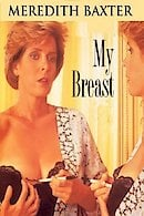 My Breast