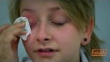 Watch Bizarre ER Season  - Eye Glued Shut | Bizarre ER Online