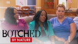 Watch Botched by Nature - Botched by Nature | Bullying Drives Woman to Fix Asymmetrical Nose | E! Online