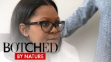 Watch Botched by Nature - Botched by Nature | Uneven Breasts Are a Big Deal on