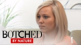Watch Botched by Nature - Botched by Nature | Can