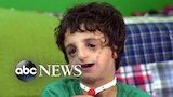 Watch ABC World News - Boy living with Treacher Collins has 53 surgeries by age 11: Part 2 Online
