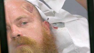 By Photo Congress || Watch Dr  Pimple Popper Season 2 Episode 10