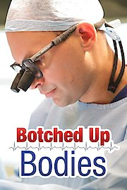 Botched Up Bodies